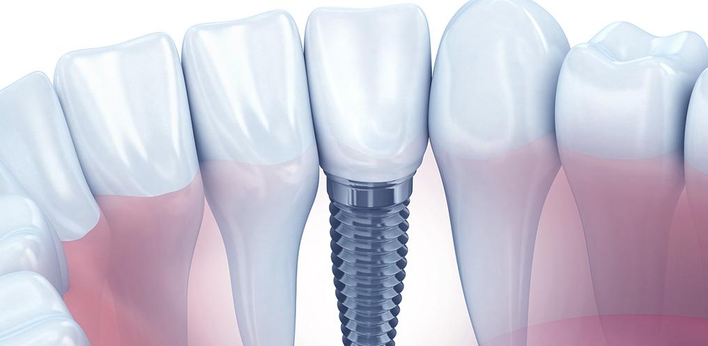 Implantes de Carga Imediata