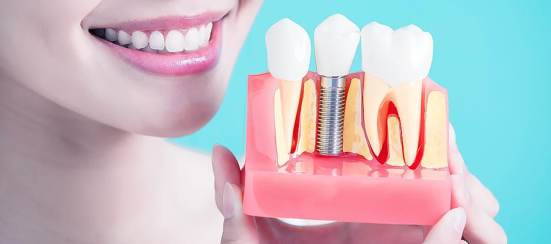 Implantes Dentários de Carga Imediata