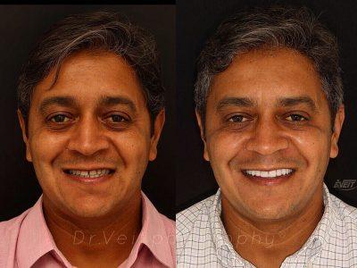 Mais um caso de sucesso: reconstruindo sorrisos, transformando vidas