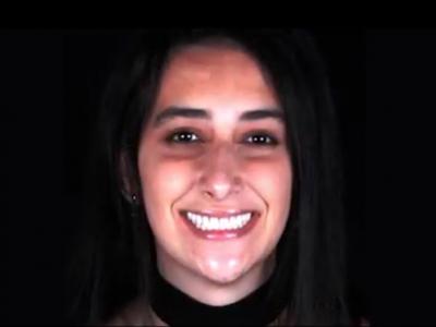 Assista o vídeo, conheça a história de Caroline Rodriguez e se emocione com a felicidade ao conquistar o sorriso ideal!