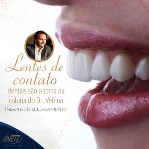 Lentes de contato dentais são o tema da coluna do Dr. Veit na Inesquecível Casamento